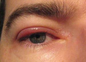 rischi dell'acido etanoico