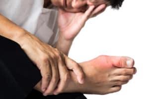 Malattie causate da eccesso di acido urico