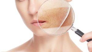 Effetti collaterali dell'acido retinoico