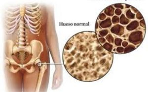 uso di acido zoledronico. Osteoporosi