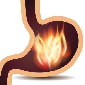 Malattie causate dall'acido gastrico