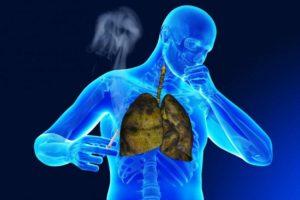 malattie che possono essere trattate con acido clavulanico