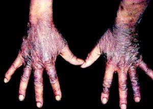 storia dell'acido nicotinico. Pellagra