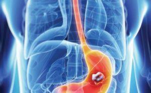 Altri effetti dello ioduro di idrogeno sul corpo