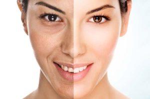 Usi e benefici dell'acido retinoico